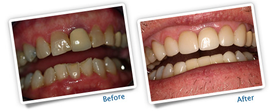 Success Stories - Bleaching, Veneers and Crowns - Before and After PIctures