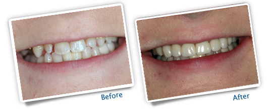 Great Plains Dental Before and After Photo Veneer example