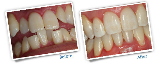 Success Stories - Great Plains Dental before and after orthodontics example