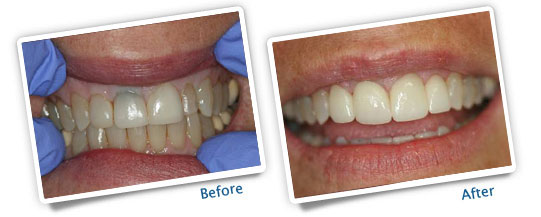 Success Stories - Veneers